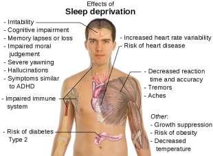 effetti della privazione del sonno insonnia