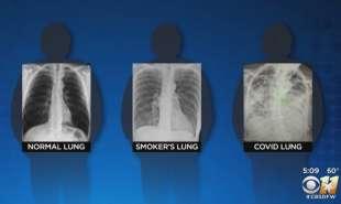 polmoni covid e fumatore 4