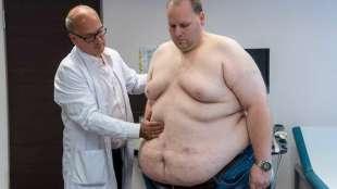 obesi in pericolo per il virus