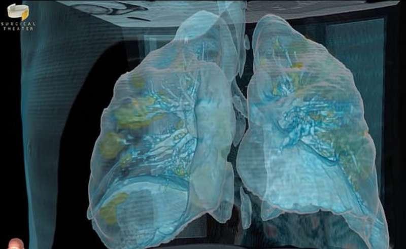 coronavirus effetto sui polmoni 7