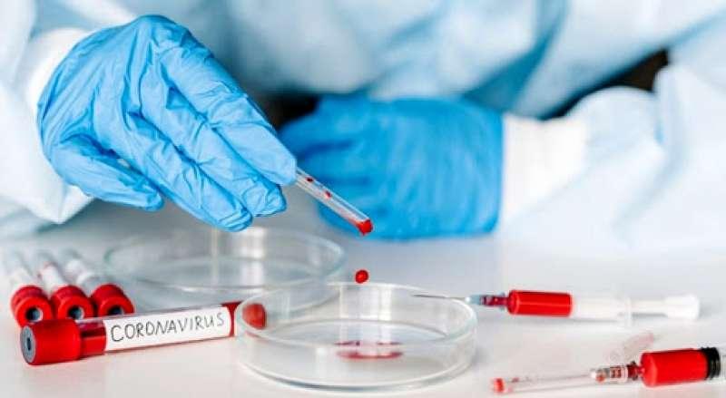 test sierologici - coronavirus