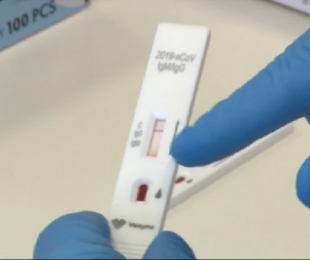 test sierologico coronavirus 1