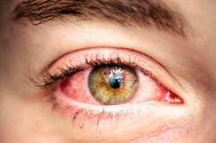 occhi rossi marijuana