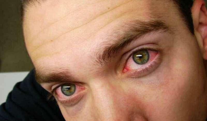 occhi rossi marijuana 2