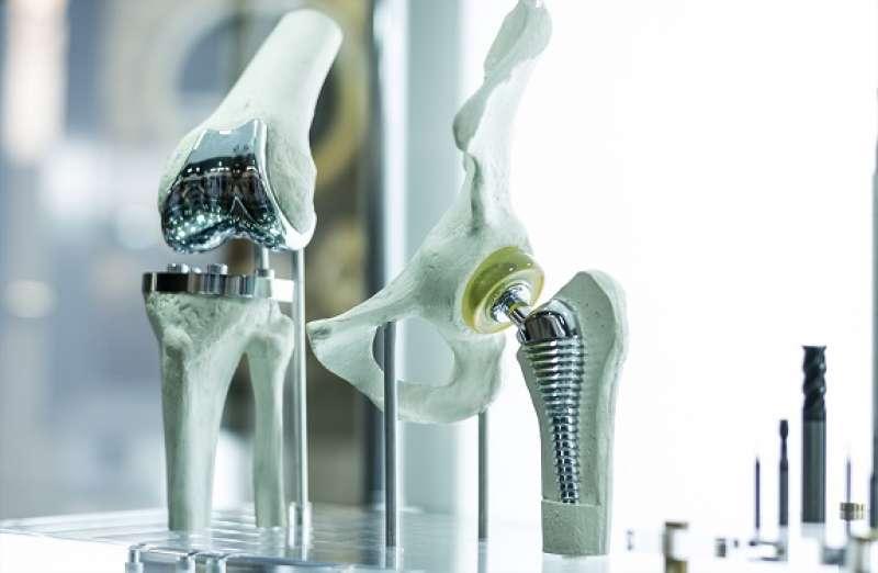 protesi ginocchio 3d in titanio