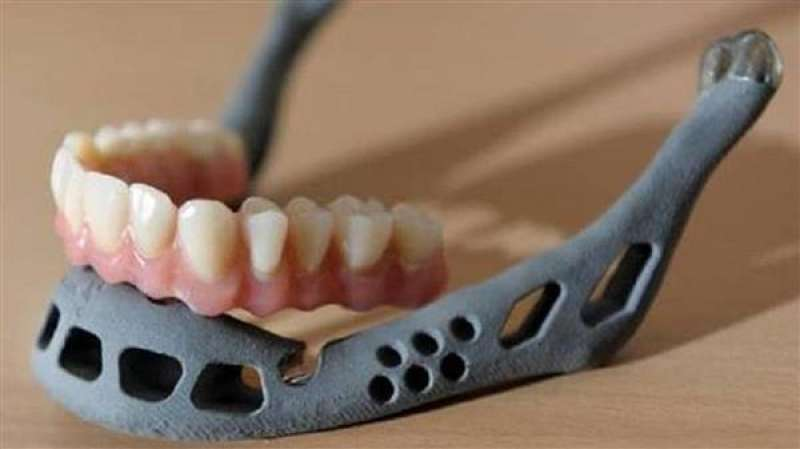 protesi mandibola 3d