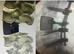 protesi vertebre 3d
