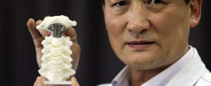 protesi vertebre 3d 2