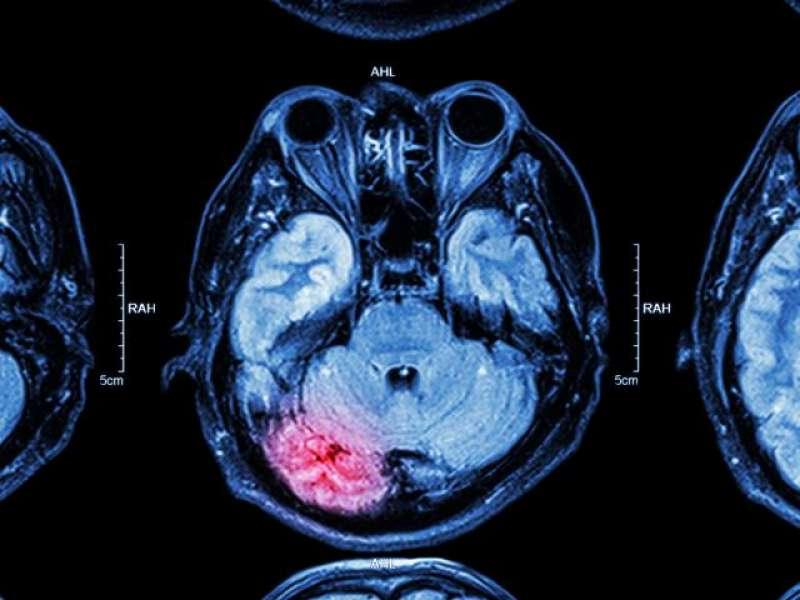 trombosi cerebrale