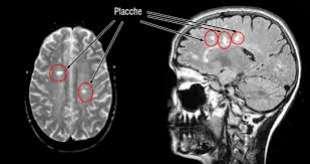 sclerosi multipla 2