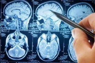 sclerosi multipla 3