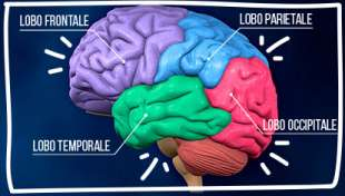 cervello 2