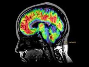 cervello 4