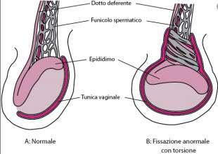 testicoli 2