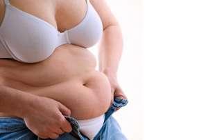 obesita' 3