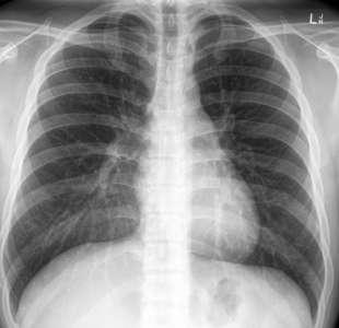polmoni di una persona positiva al covid ma vaccinata