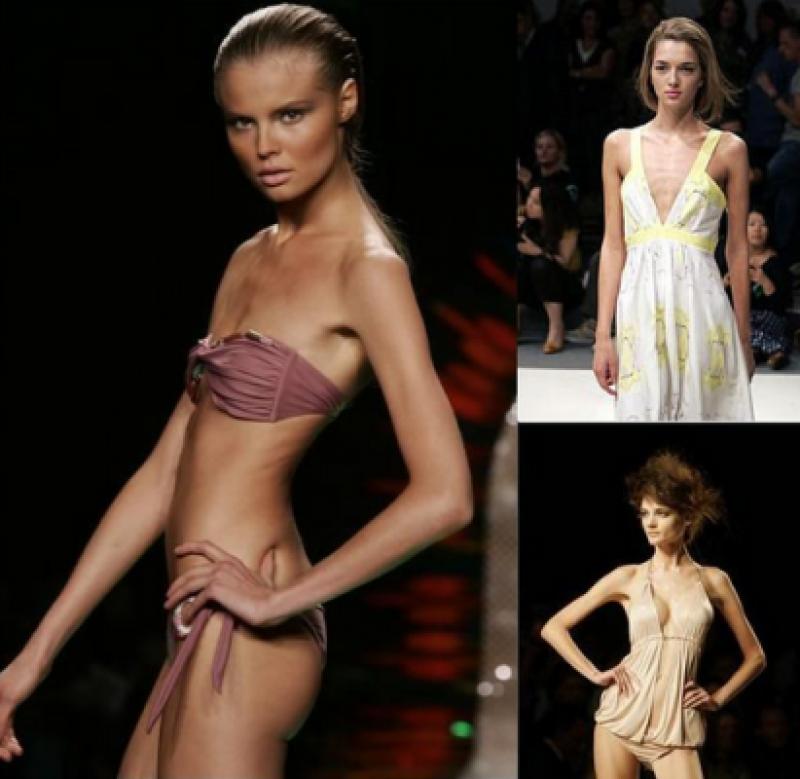modelle anoressiche 7   dago fotogallery