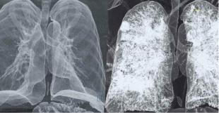 tac di polmoni sani e colpiti da covid