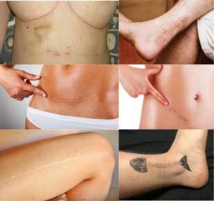 cicatrici 1