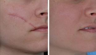 trattamento cicatrici
